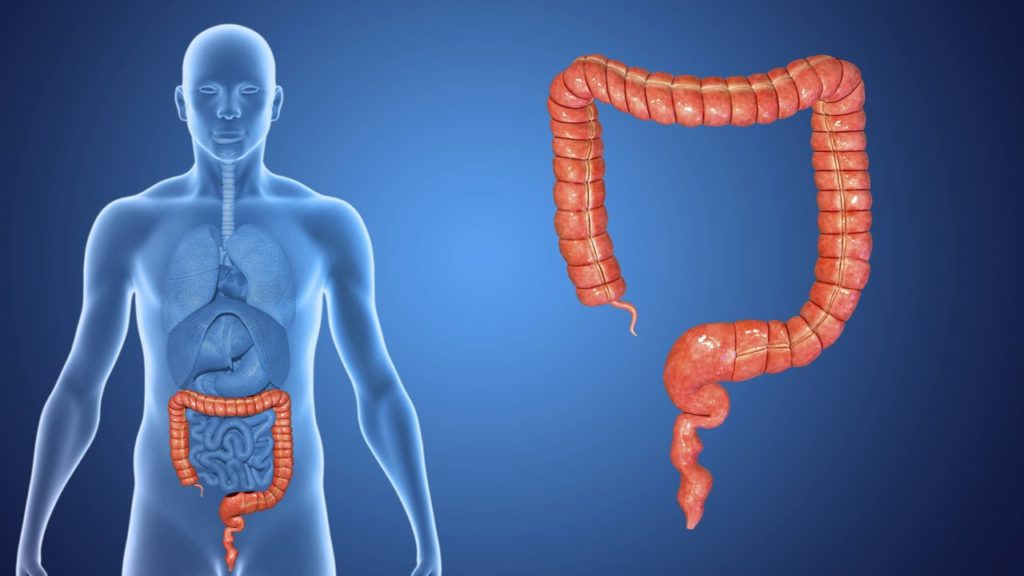 types of colorectal-cancer