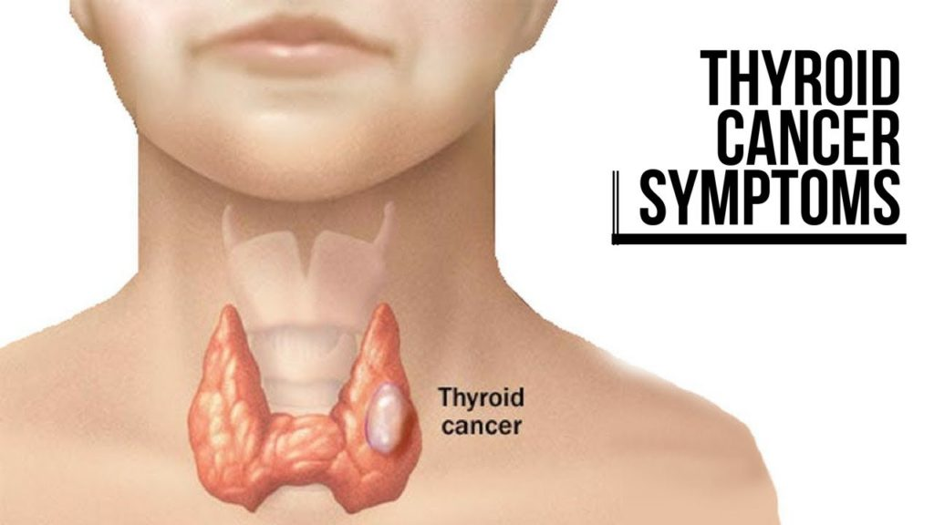 Thyroid Cancer Symptoms Types Causes And Treatment Overview