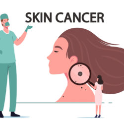 skin cancer ayurvedic treatment